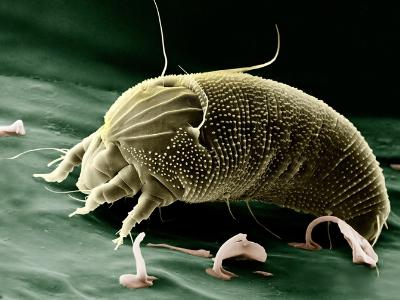 Beter Slapen zonder bacteriën